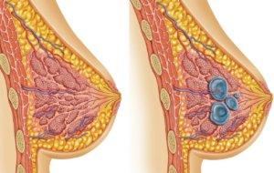 Мастопатия груди