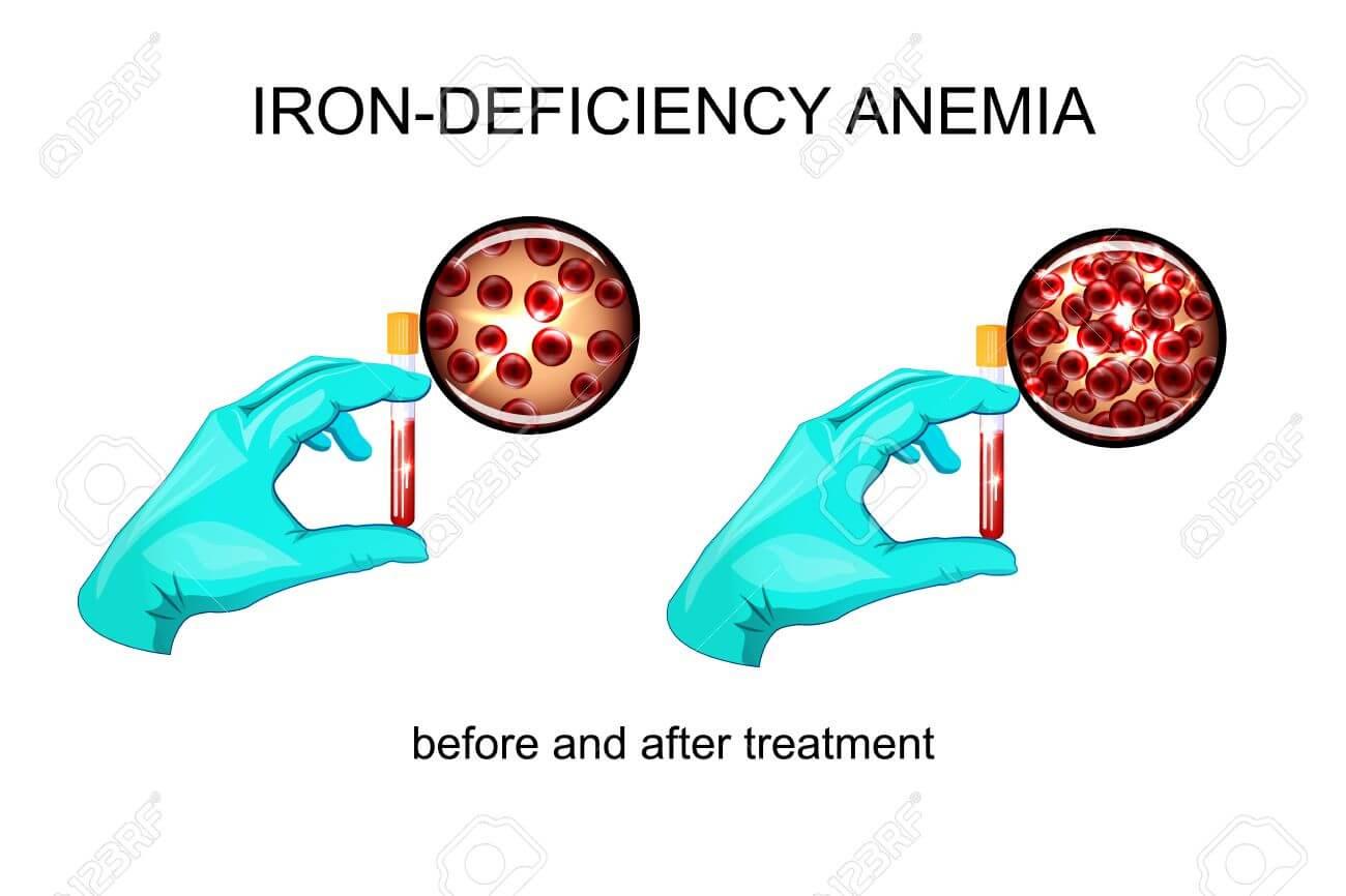 Показатель анемии