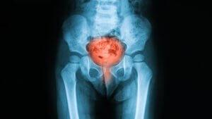 Боль в мочеиспускательном канале — как избавиться от симптома