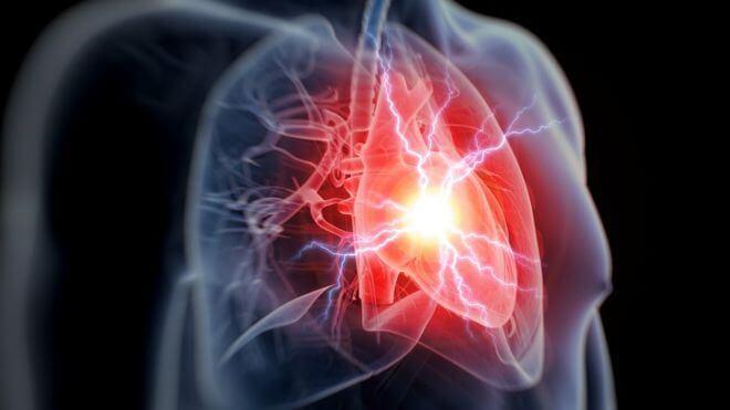 Сердечная недостаточность пациента