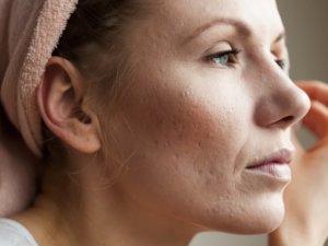 Каким образом можно убрать шрамы от прыщей — быстрые и безопасные методы