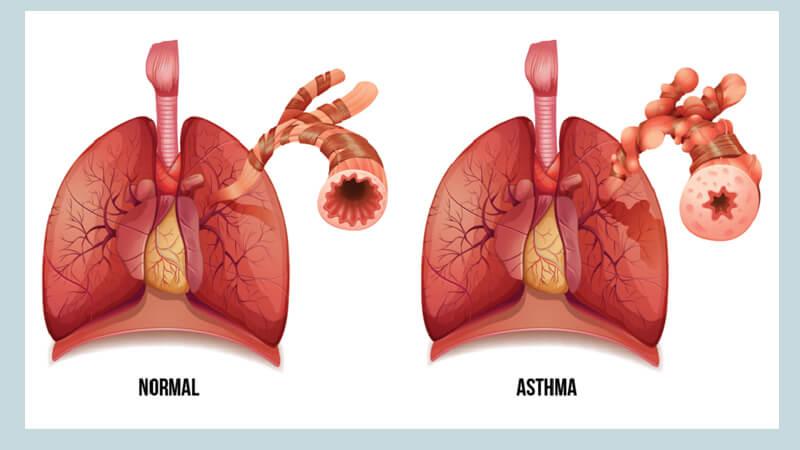 Клиническая картина бронхиальной астмы
