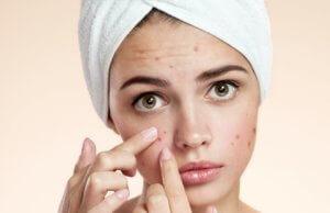 Диета при угревой сыпи на лице, основные принципы питания