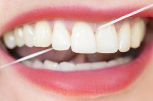 Тщательная чистка зубов