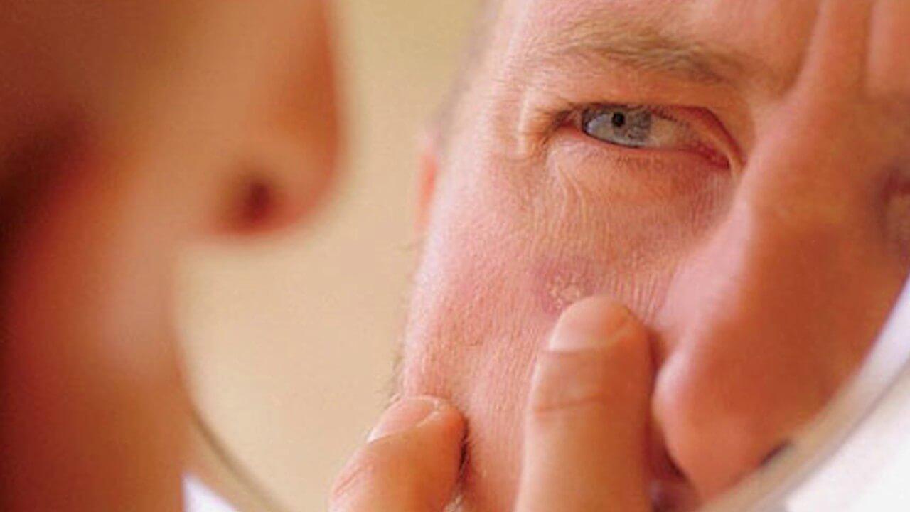 Течение болезни у мужчин