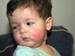 Реакция в виде аллергии