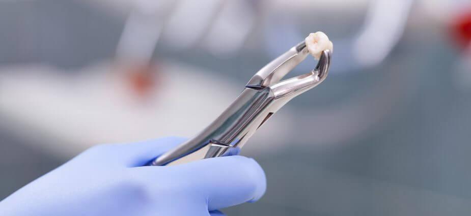 Появление свища после удаления зуба