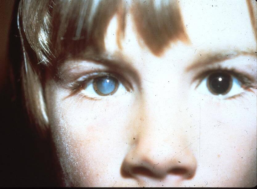 Поражение глаз из-за распространения токсокар