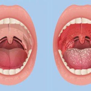 Проявления тонзиллита