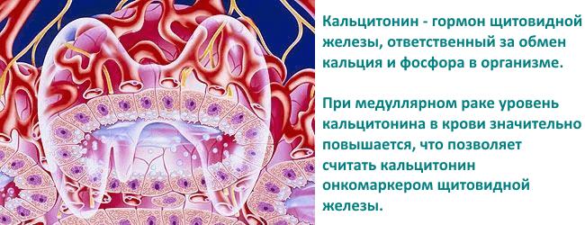 Аномалия кальцитонина