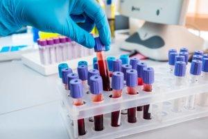 Подготовка к анализу крови