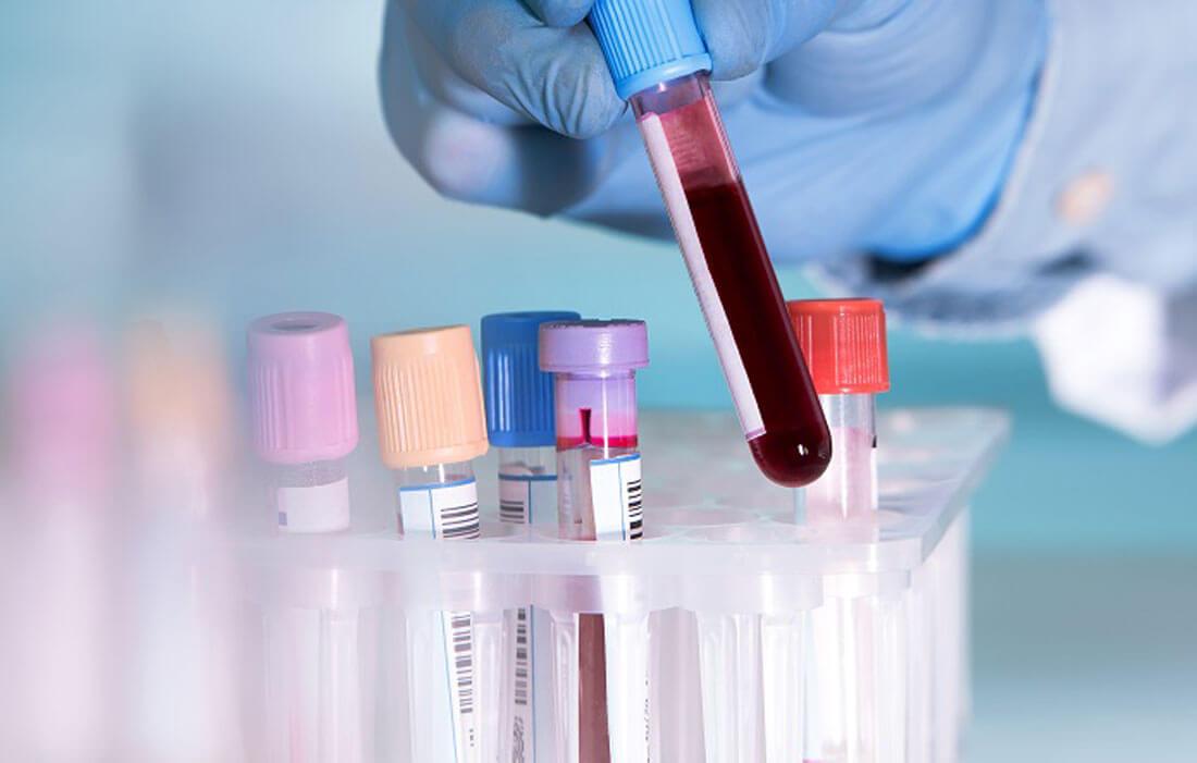 Показатели ХГЧ в крови