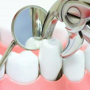 Действия после удаления зуба