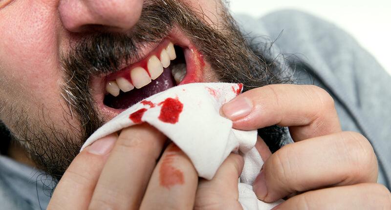 Возобновление кровотечения