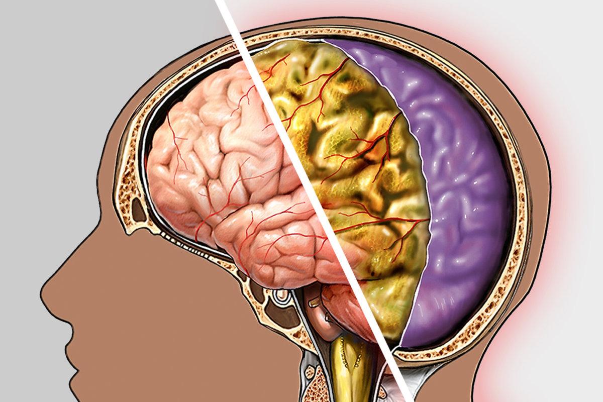 Патологическое поражение мозга
