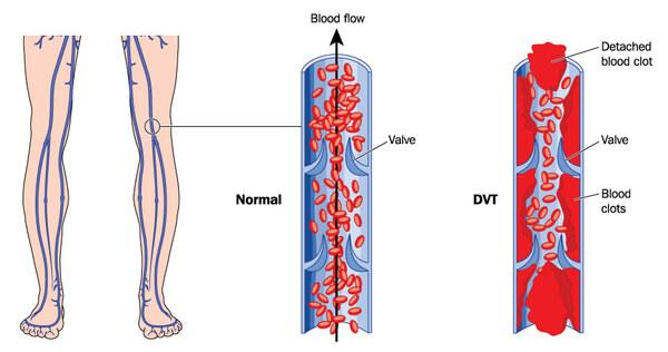 Лечение образования тромбов