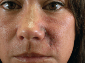 Некроз тканей лица