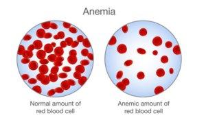 Наличие анемии