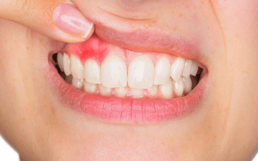 Воспалительный процесс в зубах