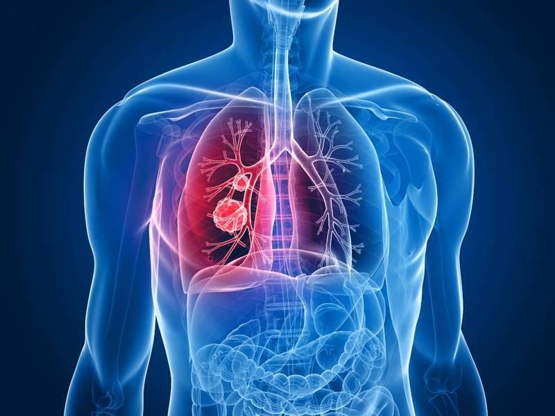 Боль в легких могут вызвать различные болезни