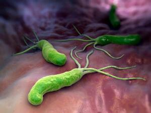 Язва желудка развивается из-за бактерии хеликобактер