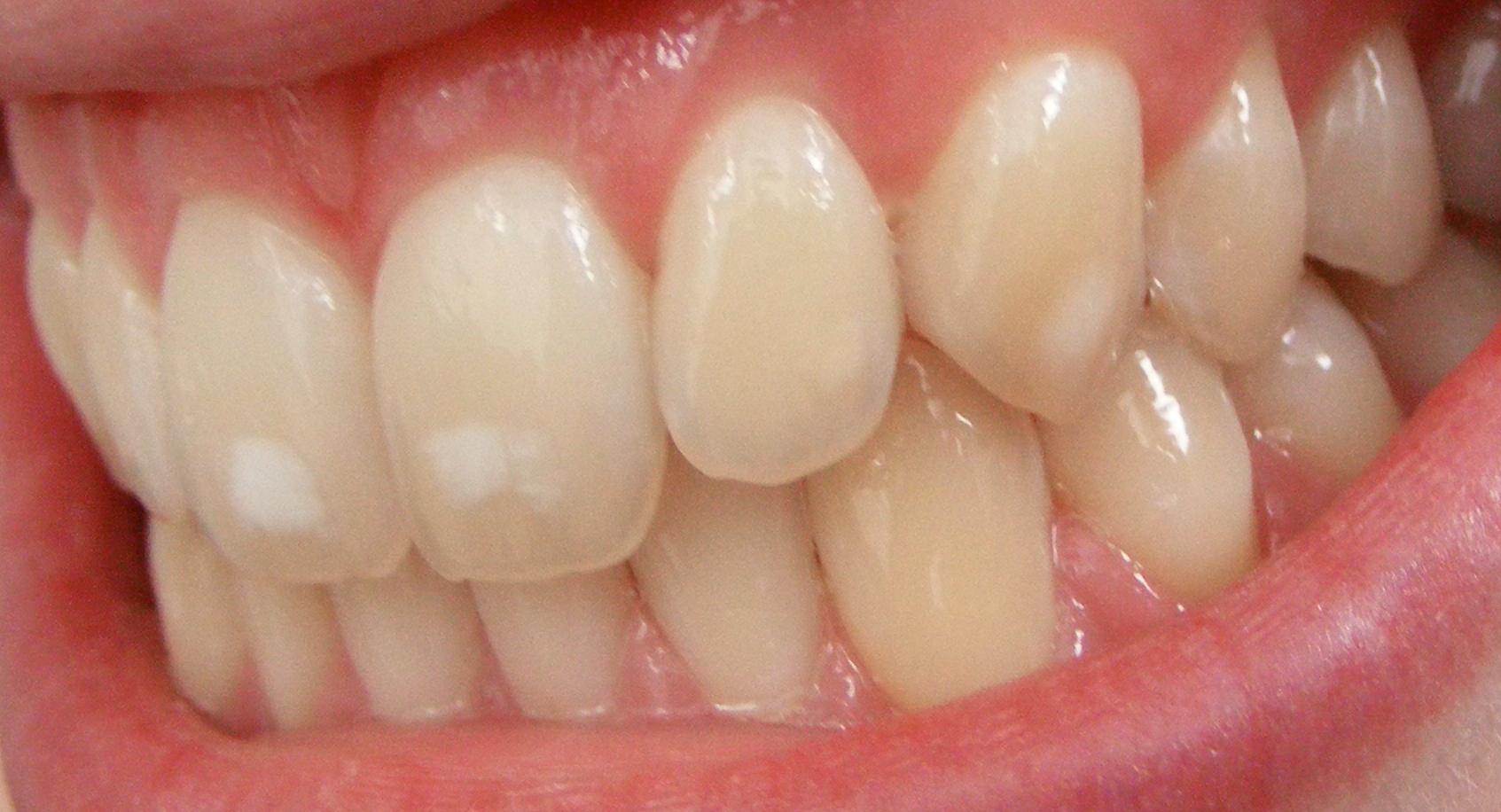 Патология зубов при передозировке фтора