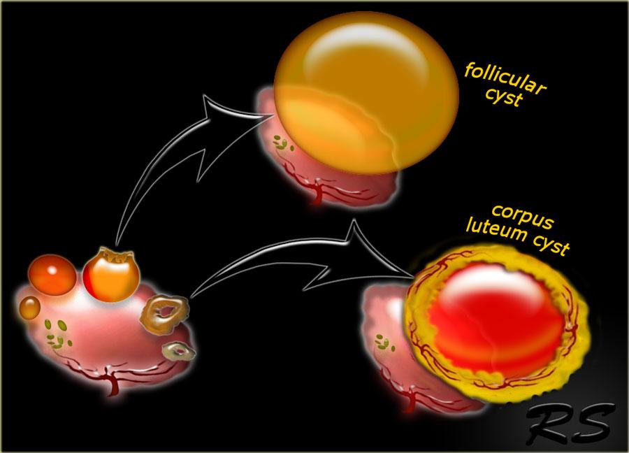Развитие кисты яичника