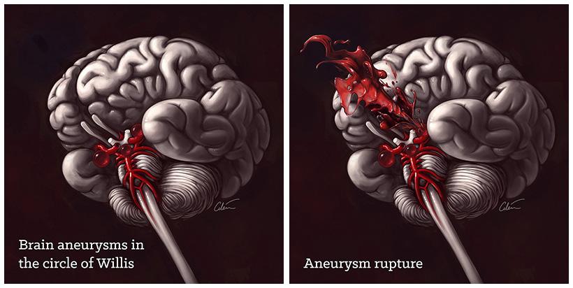 Кровоизлияние при разрыве аневризмы