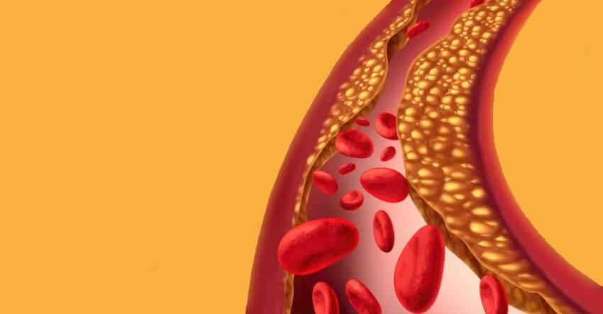 Переизбыток вредного холестерина