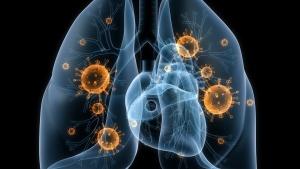 Острые респираторные заболевания провоцируются вирусами