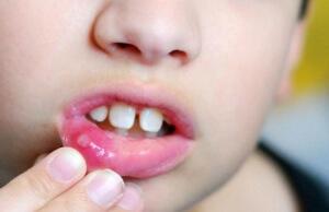 Детский стоматит