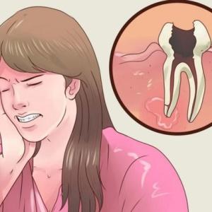 Какие таблетки помогают от зубной боли? Проверенные и эффективные обезболивающие средства быстрого действия