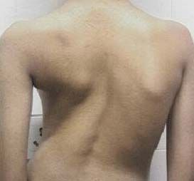 Туберкулез позвоночника: симптомы, лечение и способы диагностики