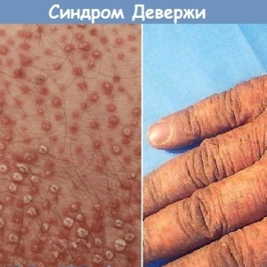 Болезнь Девержи: традиционное и альтернативное лечение болезни, в чем секрет выздоровления