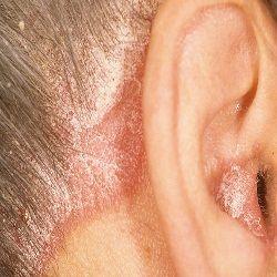 Причины псориаза