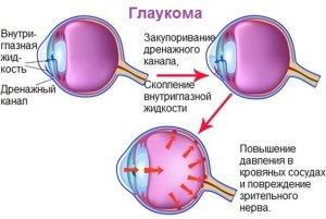Как возникает глаукома