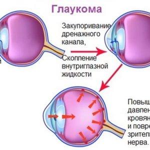 Как лечить глаукому народными средствами, чтобы добиться эффекта