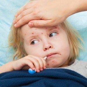 Ребенок сильно кашляет: чем лечить и как бороться с детским кашлем?