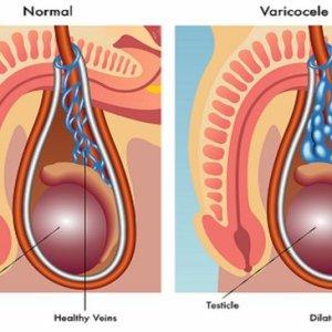Варикоцеле: восстановление после операции, современные виды лечения, последствия хирургического вмешательства
