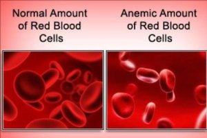 Как выглядит анемия