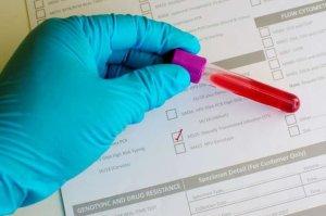 Анализ крови на инфекцию