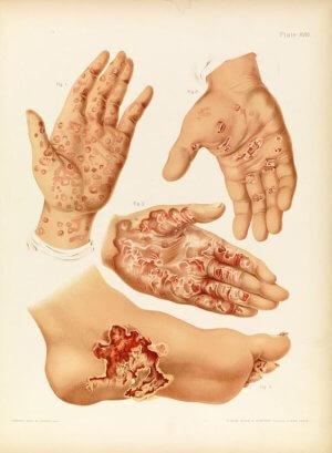 Виды венерических заболеваний