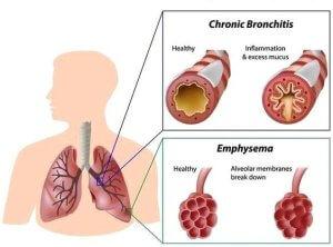 Методы лечения обструктивного бронхита