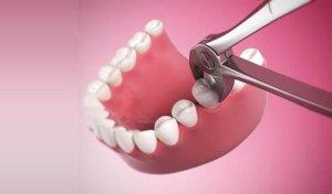 Показания для удаления зуба