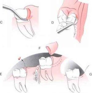 Еще один хирургический метод