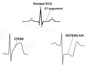 Следы микроинфаркта при обследовании