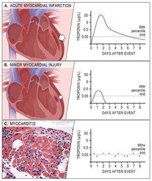 Что происходит с сердцем
