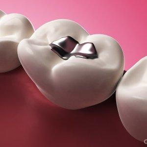 Какие бывают пломбы для зубов? В чем разница между композитными и компомерными пломбами, и чем так хороша керамика