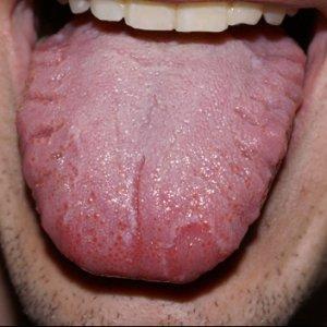 Как убрать налет на языке: причины появления, возможные признаки болезни, способы лечения