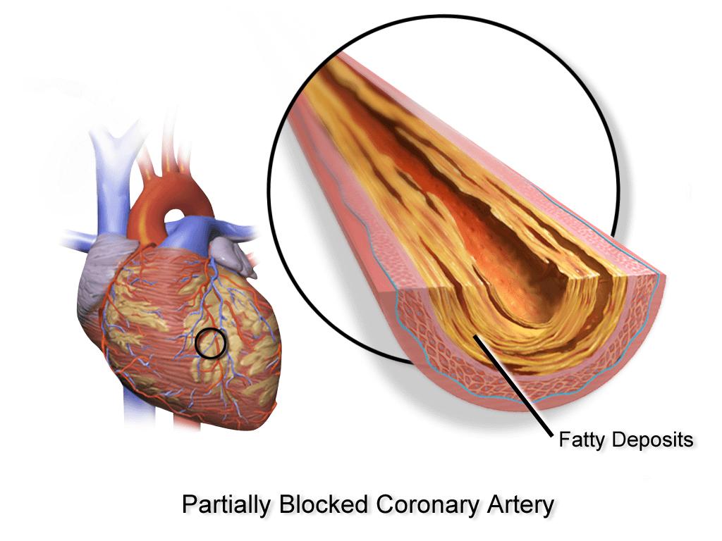 Атеросклероз аорты коронарных артерий - Про холестерин